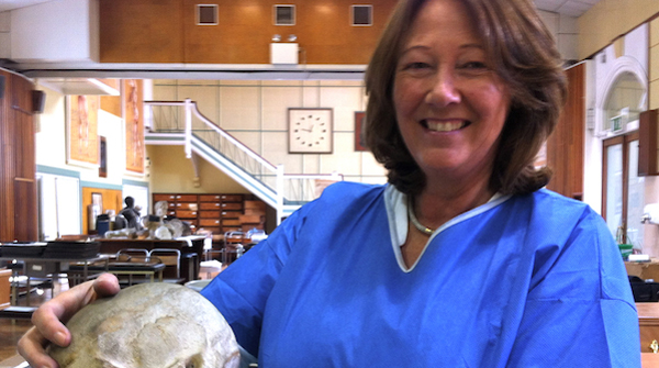 Siobhan Ward, Chief Technical Officer, Anatomy, TCD, in the 'Old' Anatomy building in TCD. iobhan is holding a plaster cast of the skull of the musician Turlough O' Carolan. O'Carolan's skull used to adorn his grave in Roscommon before it was acquired and cast by Grattan of Belfast. The photo shows Siobhan in blue scrubs in the 'Old' Anatomy Dept. Many artifacts from the Anthropometry Laboratory (1891-1903) are visible in the background.